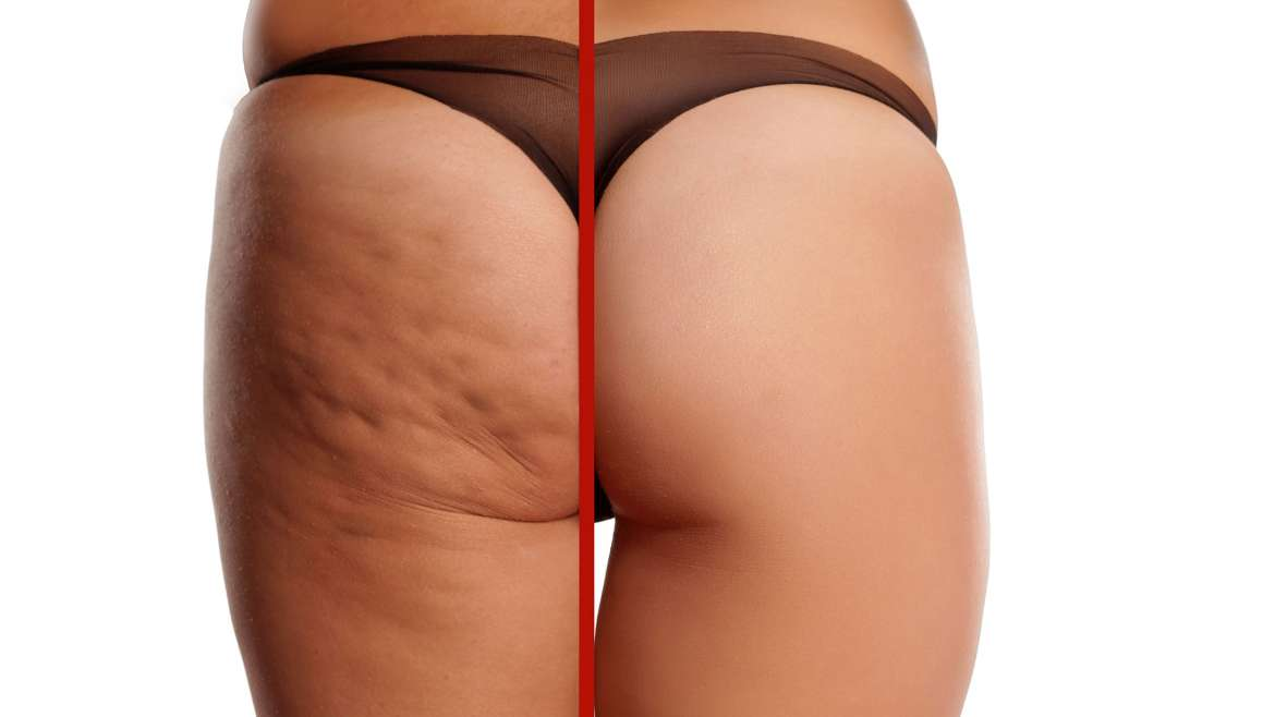 The Best Way To Eliminate Cellulite